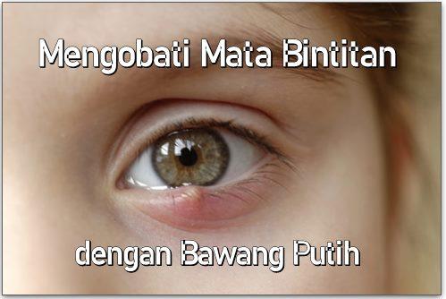 Cara Mengobati Mata Bintitan dengan Bawang Putih 1